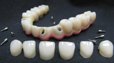Zirconia Porcelain Crowns